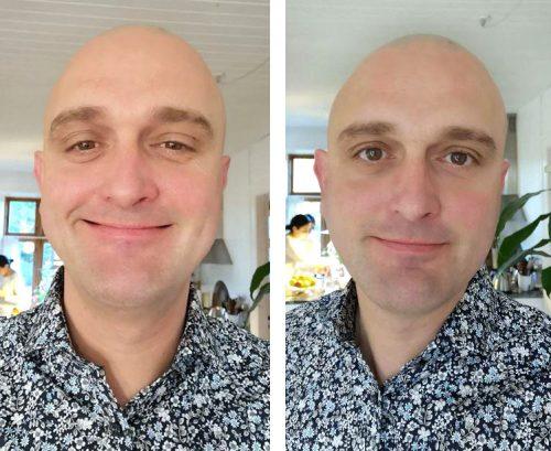 Før og efter første behandling